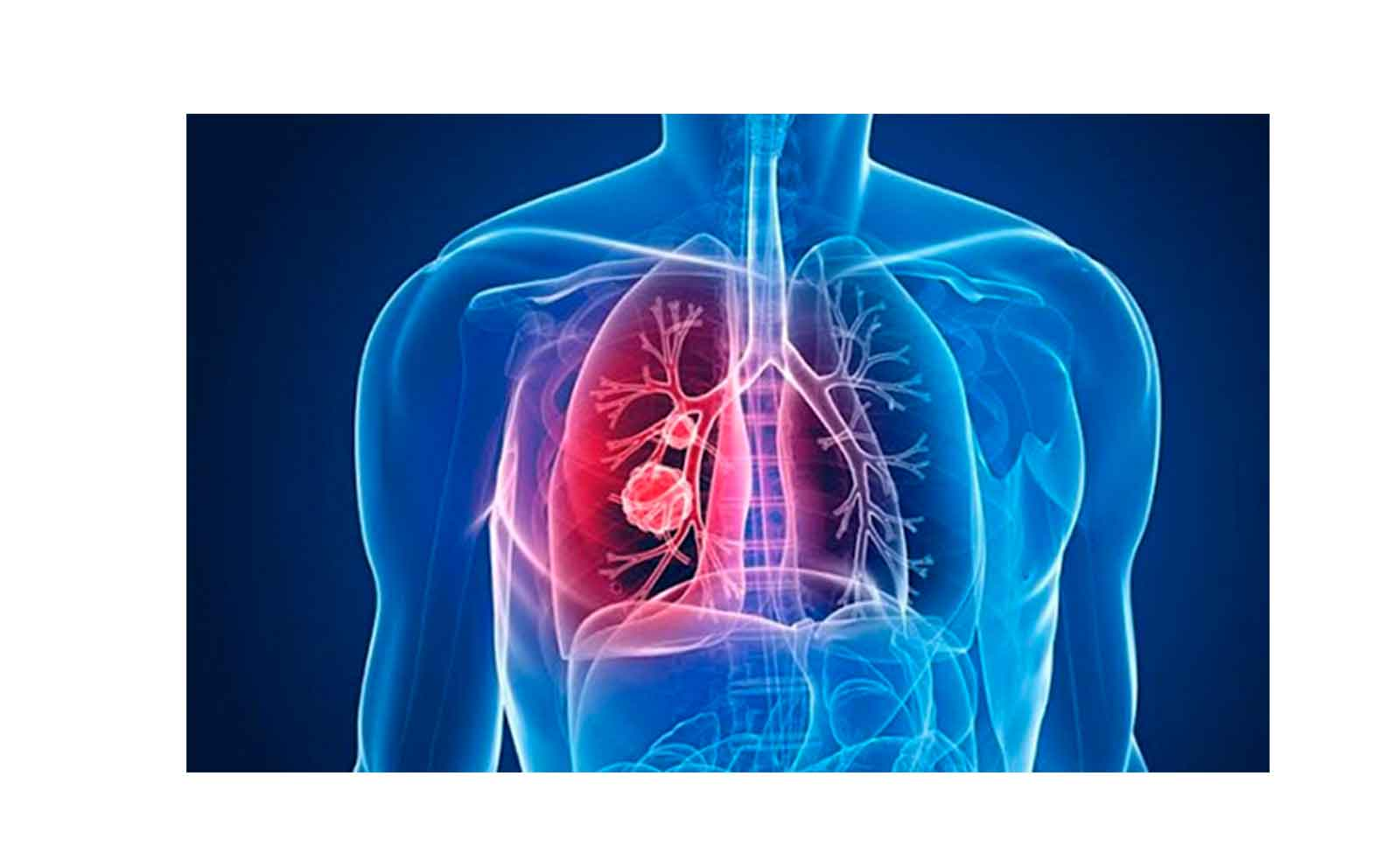 clinica internacional hipertension pulmonar